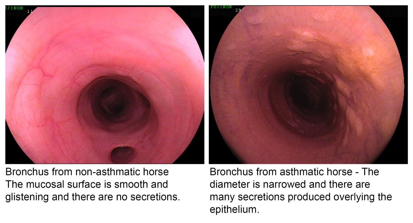 Scoping image of bronchus from asthmatic horse and non-asthmatic horse