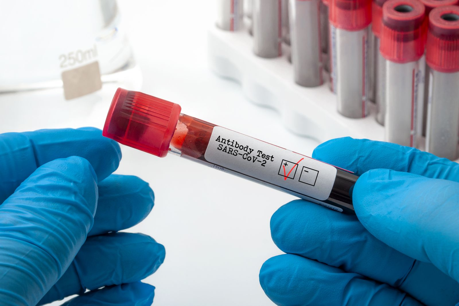 Person holing a tube of blood tested for COVID19 (iStock-photo credit_Moussa81)