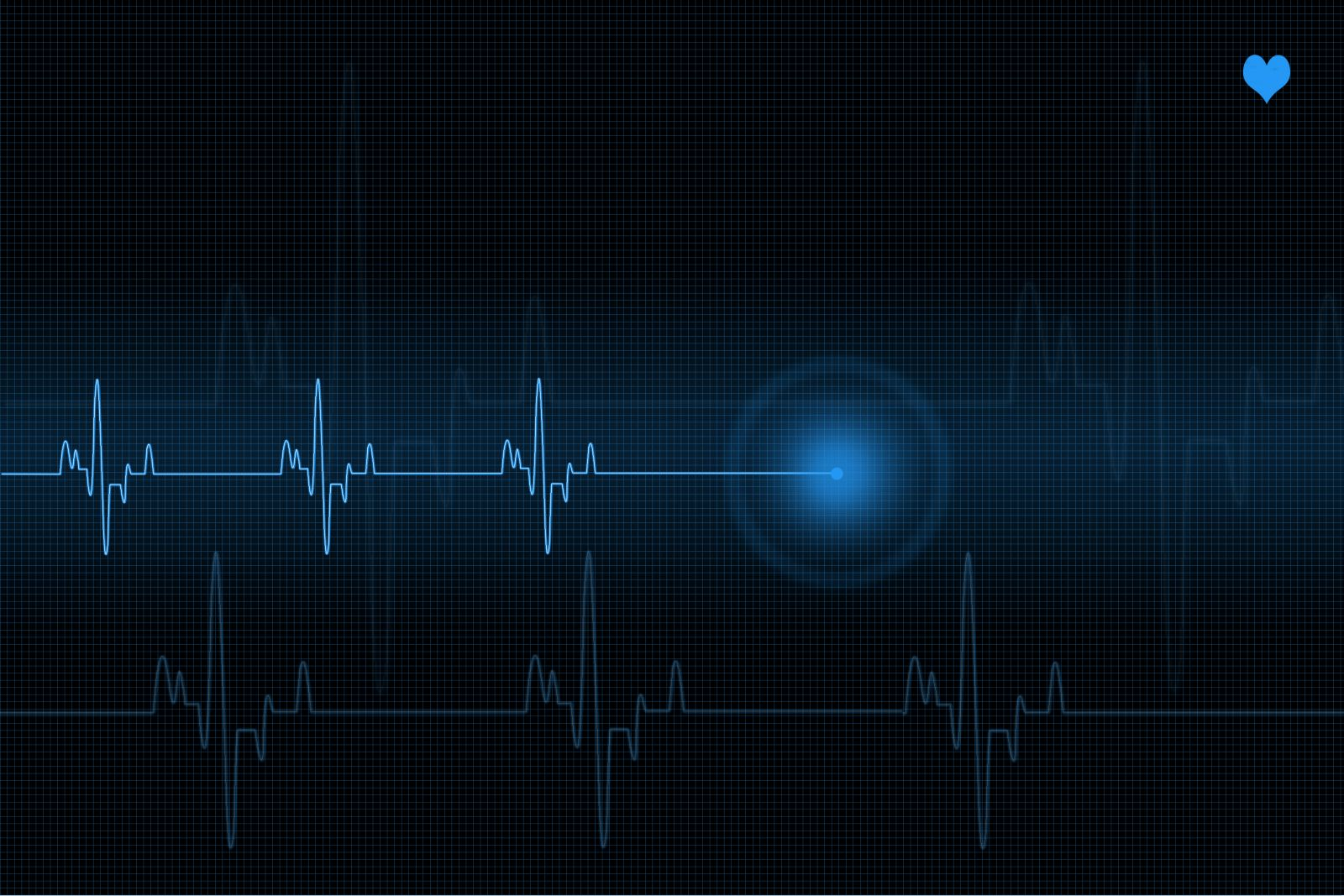 Pulse trace heart monitor in blue shades stock photo (Illustration credit: IStock: mkurtbas)